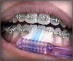 Brushing when you have Orthodontics