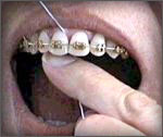 Flossing between your teeth with Orthodontics